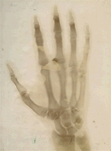 Origins of radiology